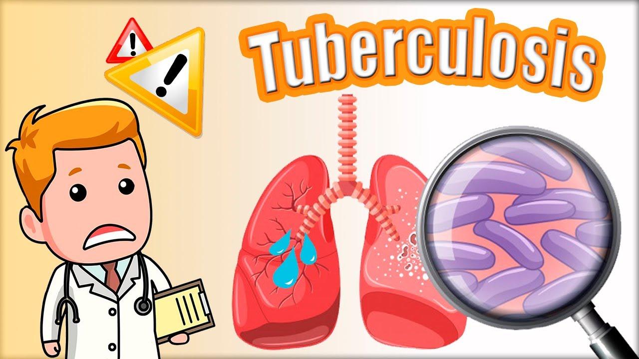 Download 🔴🔴 TUBERCULOSIS (TB): síntomas, diagnóstico (Mantoux) y tratamiento. Mycobacterium tuberculosis