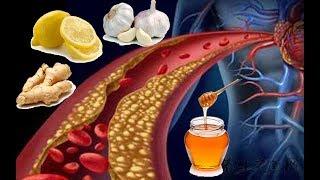 ★Чеснок, лимон, мёд и имбирь ОЧИСТЯТ СОСУДЫ от лишнего ХОЛЕСТЕРИНА и предотвратят АТЕРОСКЛЕРОЗ.
