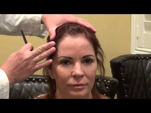 woman-receding-hairline-bald-hair-loss-transplant-surgery-1-yr-result-dr.-diep-www.mhtaclinic.com