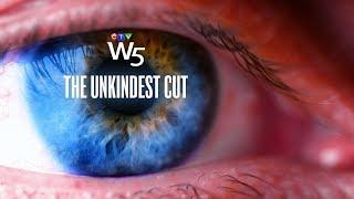 W5: Rare but devastating side effect of laser eye surgery
