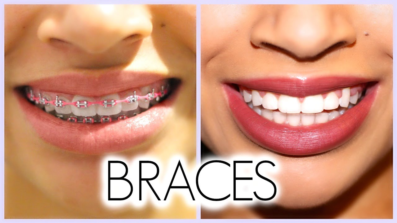 My 3 Year Braces Experience Before After Q A Youtube