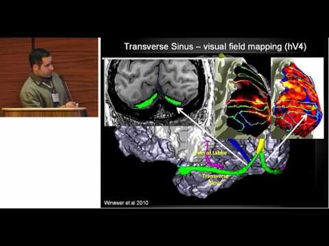 Neuroscience at the 7T(s) in Minneapolis (Essa Yacoub)