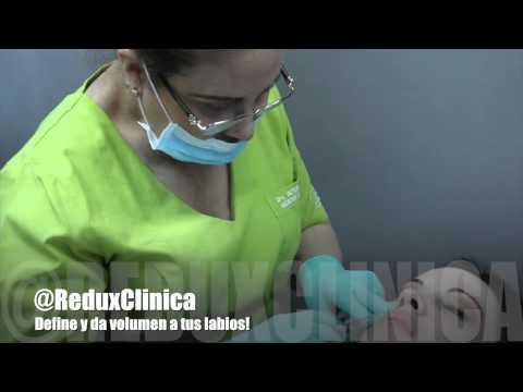 Aumento de Labios @ReduxClinica