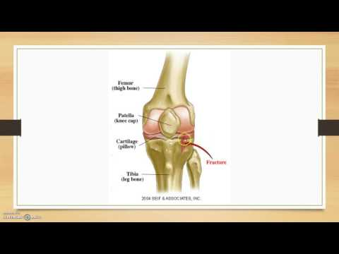 Tibial Avulsion Fracture