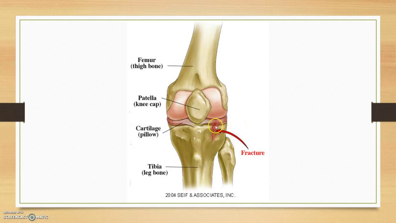 Tibial Avulsion Fracture Youtube