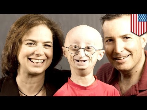 Kids with rare premature aging disease meet in Va.