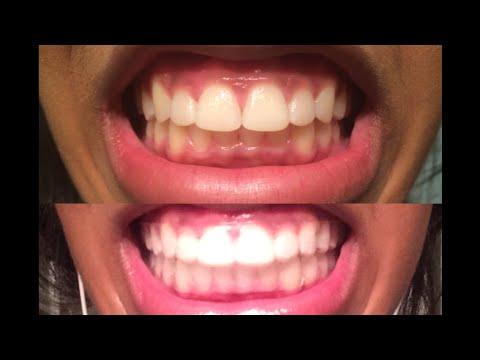 Smile Brilliant Custom Teeth Whitening Trays Review Youtube