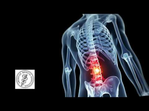 Spinal Ligament Injury Commercial - Back Pain Chiropractor Chesapeake Virginia