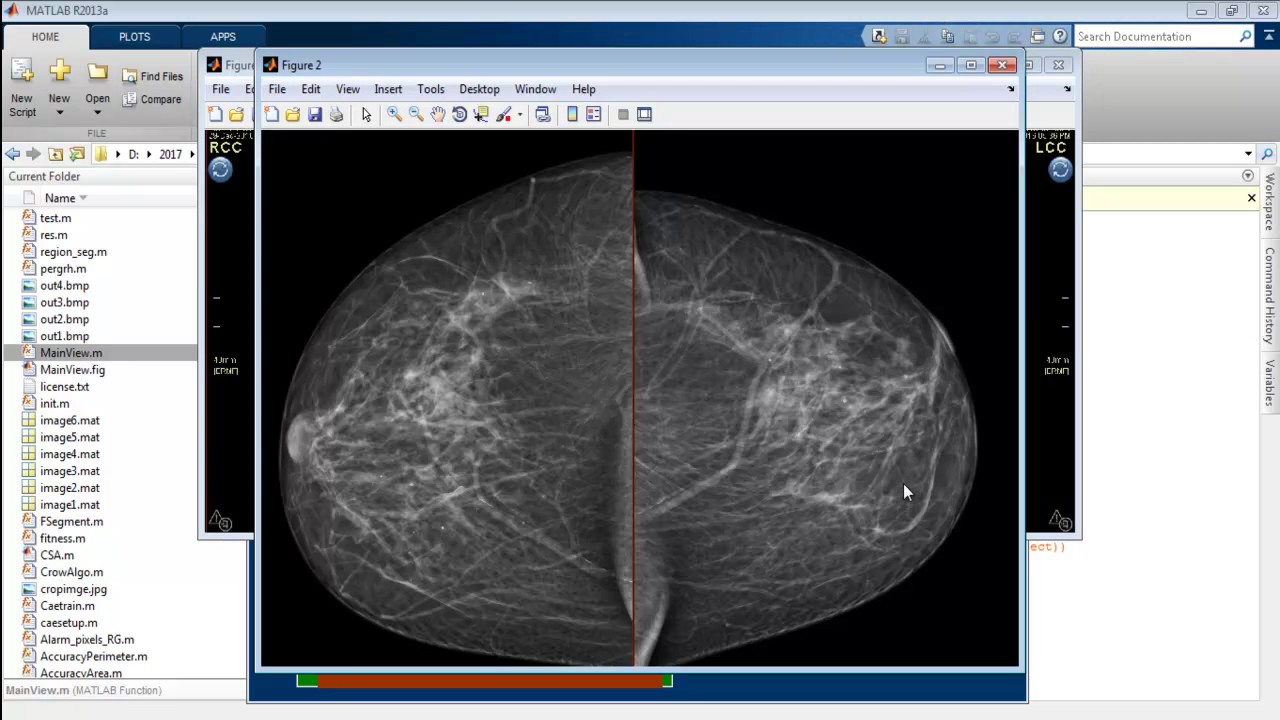 Breast Cancer Matlab Code Projects