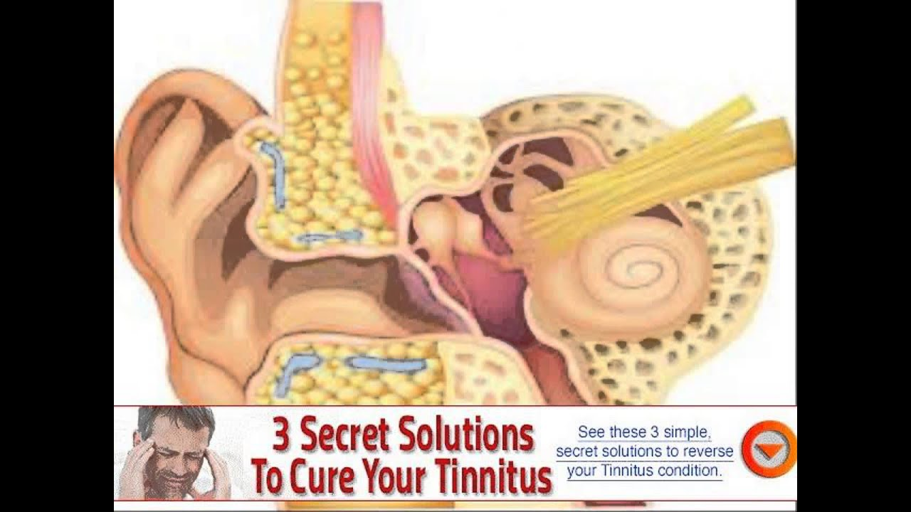 what can cause an ear infection in adults - YouTube