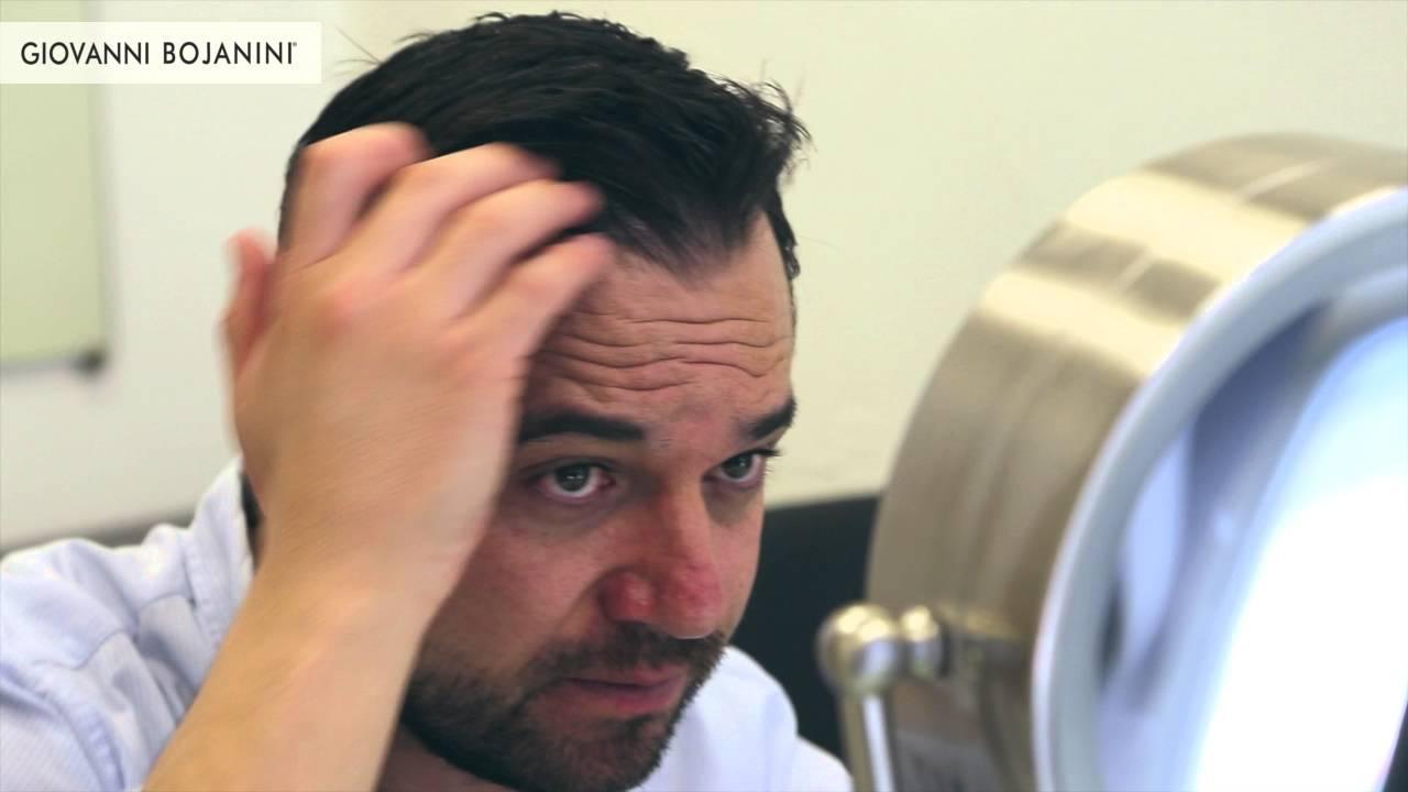 Especialistas en caida de cabello bogota