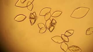 Кристаллы мочевой кислоты.