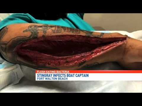 Flesh Eating Bacteria Found in Texas WARNING: GRAPHIC IMAGES