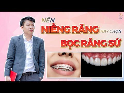 vệ sinh răng niềng tại Kemtrinam.vn