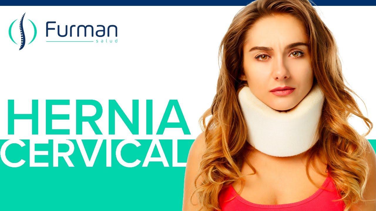 Hernia de Disco C6-C7