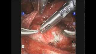 Robotic Thyroidectomy Transaxillary