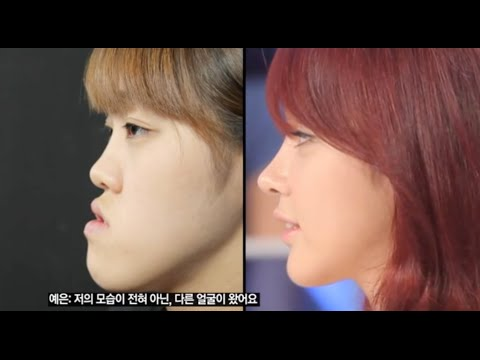 [ID Hospital Review] Amazing Surgery Review! Korea Plastic Surgery, Let Me In Huh Ye Eun