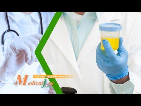 Бак анализ мочи/ бакпосев/ бактериологическое исследование.  Как сдавать? Сколько делается анализ?