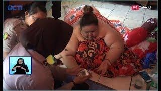 Tim Medis Periksa Kondisi Titi, Wanita Obesitas Berbobot 350 Kg - SIS 08/01