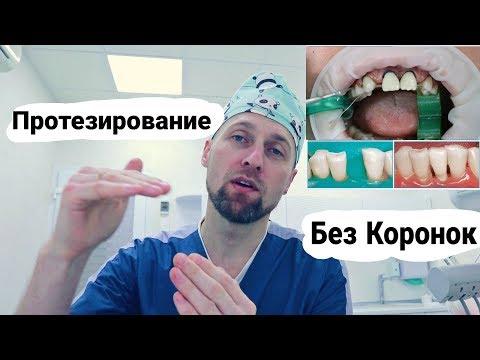 Протезирование Зубов Без Коронок