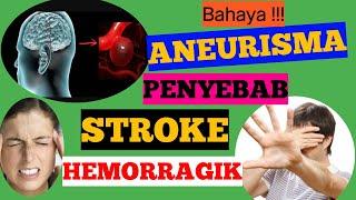 Animasi medis:Perbaikan aneurisma pembuluh darah..
