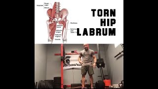 Torn Hip Labrum? DO THIS NOW! | SmashweRx | Trevor Bachmeyer