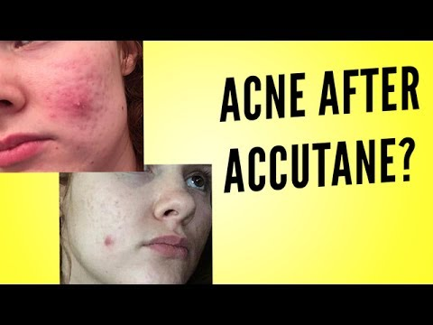 Discount canadian accutane
