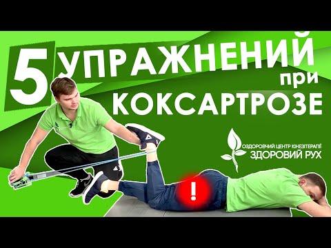5 упражнений при коксартрозе тазобедренного сустава