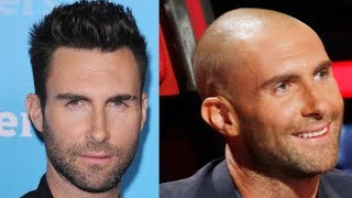 ✅Celebrity Hair Transplant Transformations! Why shaved head doesn´t suit everybody!