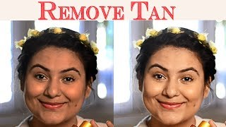 Remove tan naturally {Delhi fashion blogger}