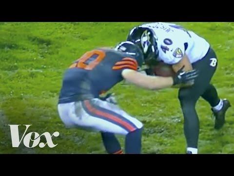 The NFL's concussion crisis, explained