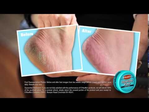 o keeffes foot cream review