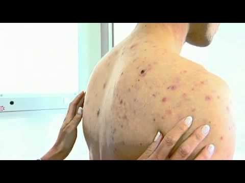 Acne Amp Scar Treatment With Fraxel Laser Sydney Cbd