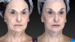 Facial Rejuvenation 3D Before and After-04