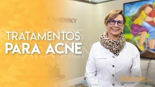Acne: tipos, causas e tratamentos