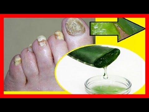 Se aleja la uña a la piel del dedo que curar