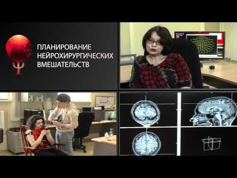 Эпилепсия: причины и симптомы - что обязательно нужно знать
