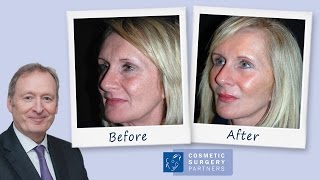 Face Lift patient review for Cosmetic Surgery Partners London