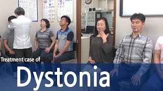 Ross talks about living with neck dystonia (also known as cervical dystonia and spasmodic torticolli.