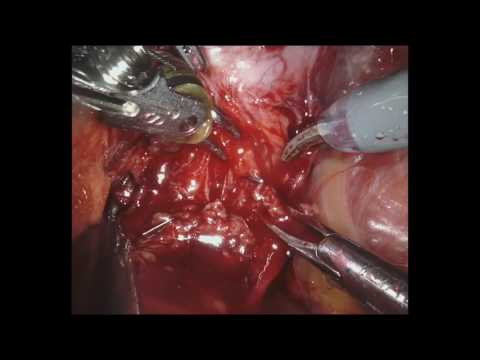 Full Length Robotic Radical Prostatectomy - Lateral Approach - Dr. Richard Gaston