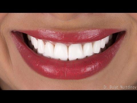 Виниры, белые зубы.