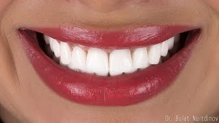 Виниры, белые зубы.(IPS e.max, veneers, Bleach 2., 2016-04-06T22:32:52.000Z)