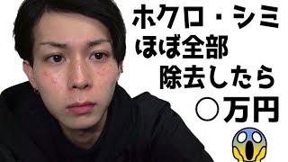 顔のホクロほぼ全部除去したら◯万円だったんご。