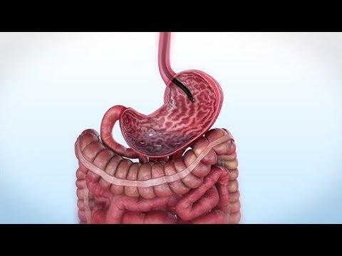 endoscopic-sleeve-gastroplasty-(esg)-q&a-with-dr.-victoria-gomez