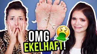 ACHTUNG EKLIG! 🤢Wir testen eine virale FOOT PEEL MASKE! 😭 Funktioniert es?!