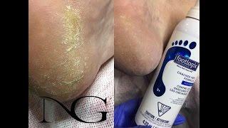 Пяточные трещины - лечение и профилактика. Footlogix Callus Softener & Cracked Heel Formula