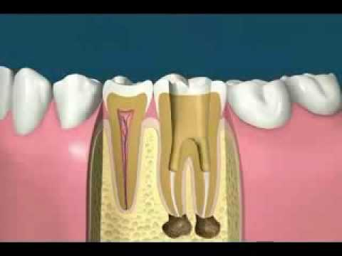 Root Canals in New york, NY with Smile in the City Dental Group