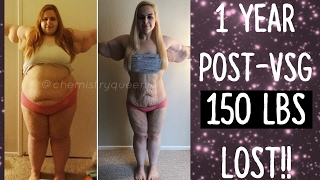 1 YEAR Post-Op VSG || 150 POUNDS LOST! || Full Body Pictures!
