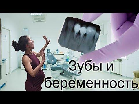 Снимок зуба при беременности.Можно ли лечить зубы при беременности? Чем заняться в декрете.