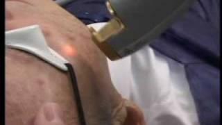 Ethia - Tratamiento con Láser Génesis.